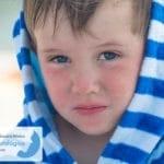 Dermatitis Atópica: Tratamiento con pijama húmedo