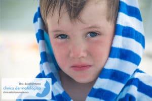 Niño con dermatitis atópica