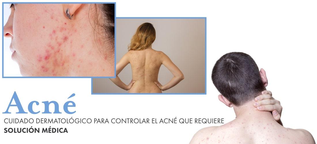acne-cuidado-dermatologico