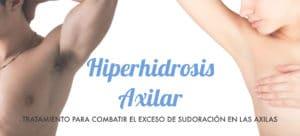 hiperhidrosis-axilar-tratamiento