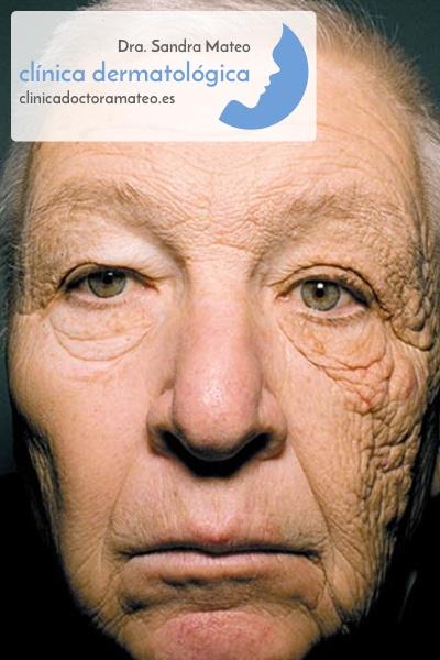 Envejecimiento Solar (Efectos del bronceado excesivo)