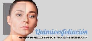 Tratamiento Quimioexfoliación