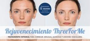 Tratamiento ThreeForMe