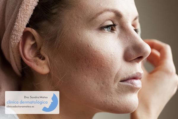 Tratamiento de cicatrices de acné
