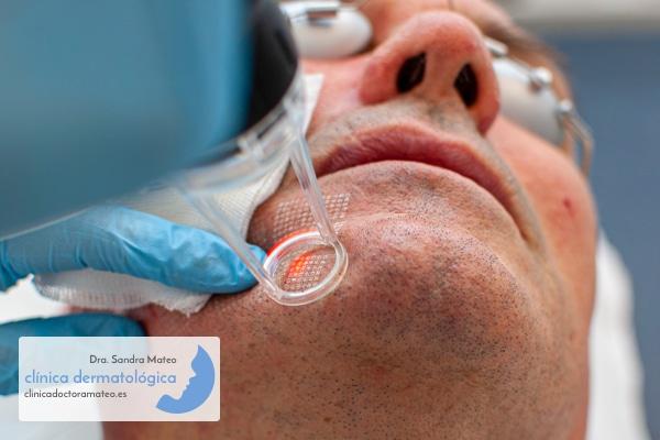 Rejuvenecimiento facial mediante resurfacing con láser CO2 en hombres.