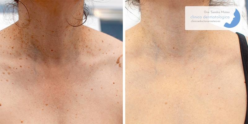 Antes y después del tratamiento láser de queratosis seborreicas.